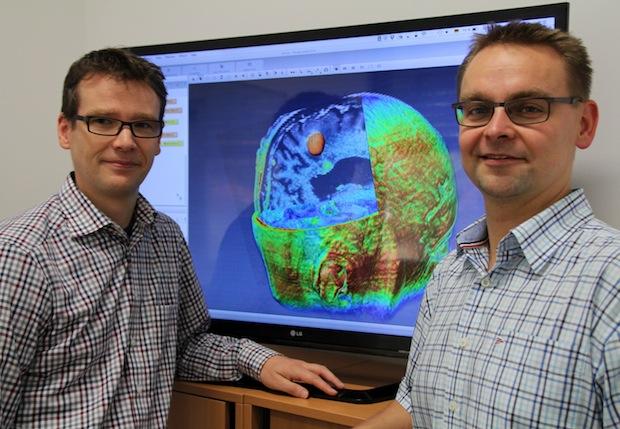 Photo of Projekt der OTH Regensburg zur Optimierung der Therapie bei Hirntumoren