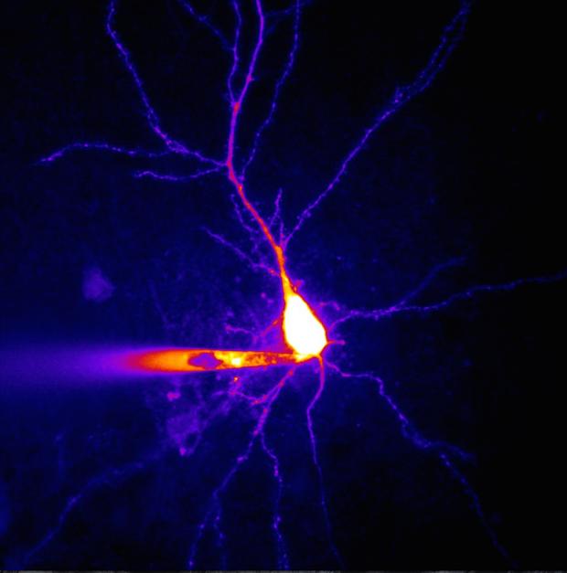 Photo of Wenn der Türsteher in Nervenzellen zu viel durchlässt
